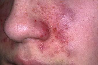 Мазь от кожного дерматита на руках